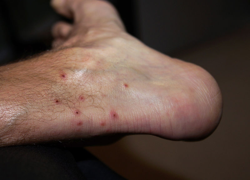 Ankle Covered with Chigger Bites