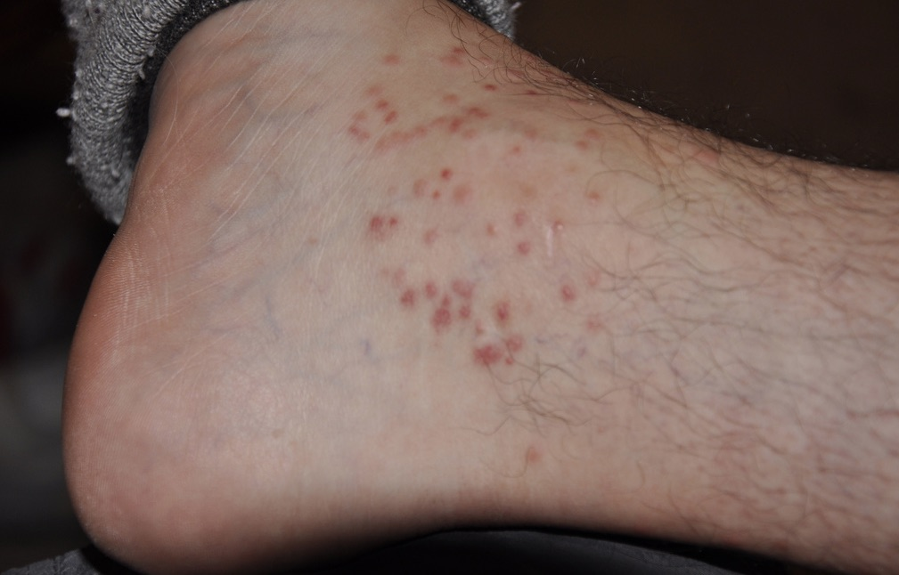 Chigger Bites on the Ankle