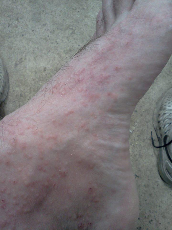 chigger bites on feet