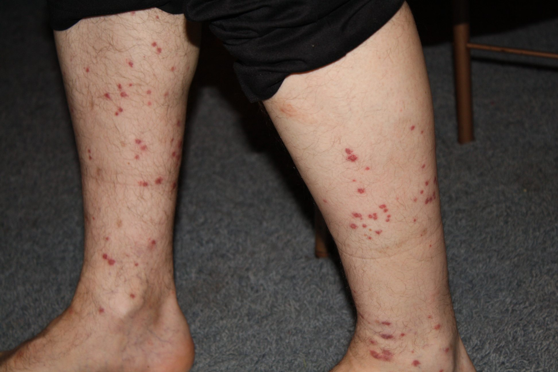 What are Chigger Bites?