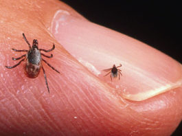 chiggers vs scabies